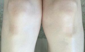 脱毛後のひざ
