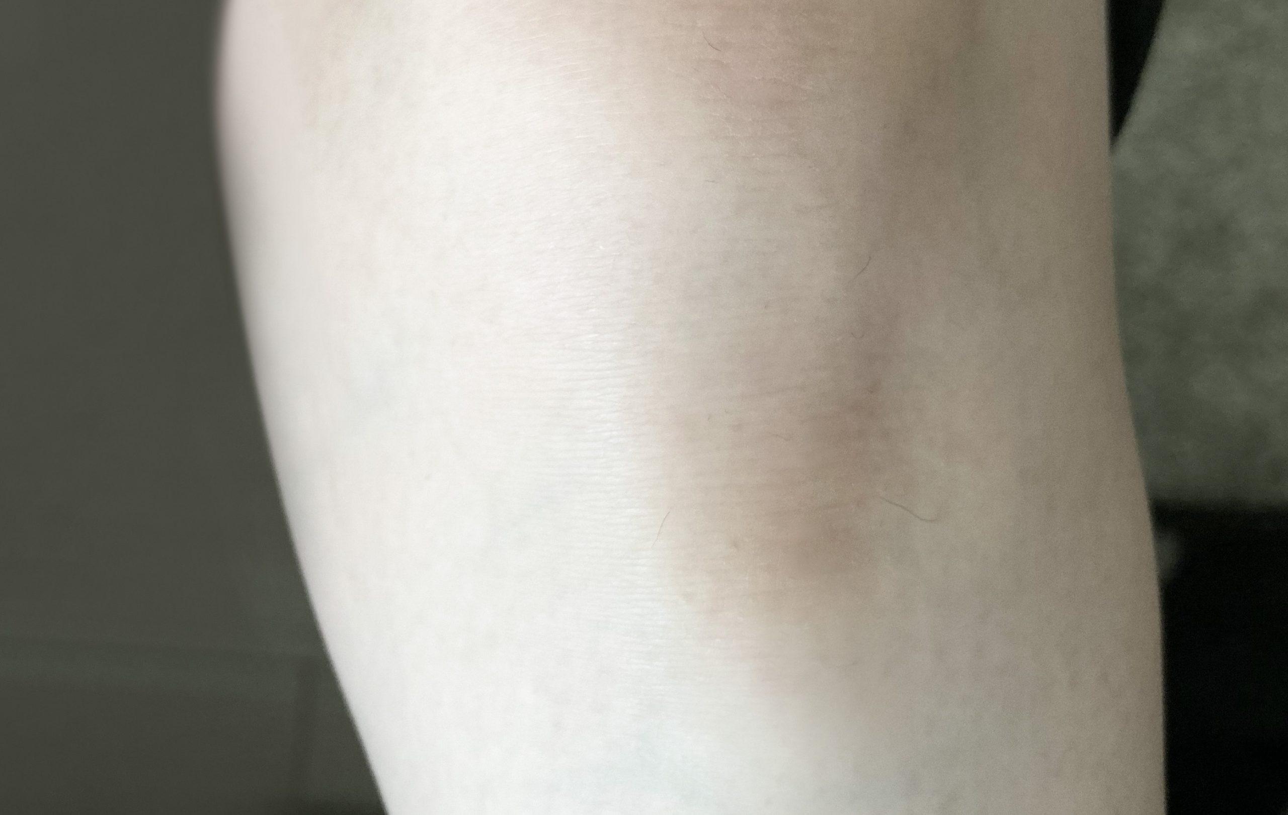 セルフ脱毛後の左足