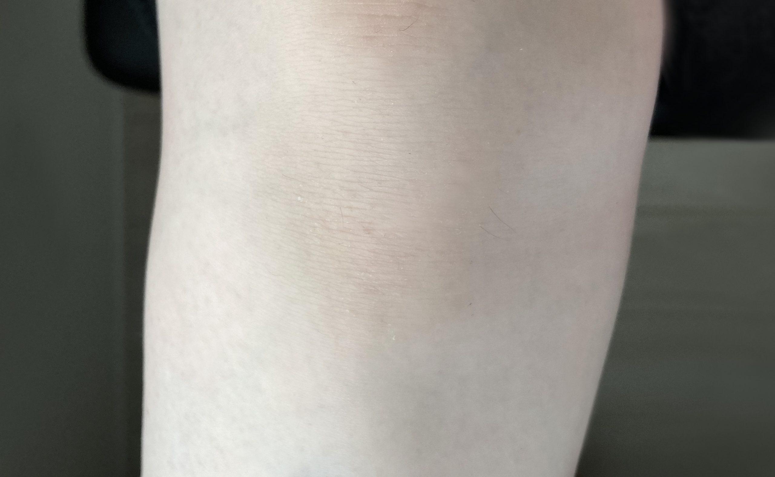 脱毛後の右足
